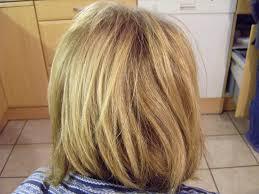 Hair transplant clinic műtéti előkészítéssel